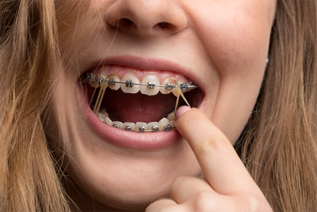 Interarch Elastics Are Important To A Successful Orthodontic